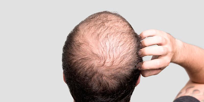 Estrés y alopecia difusa