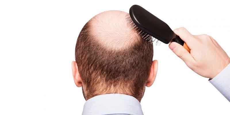 Alopecia por tracción: tratamiento de injerto capilar en Madrid