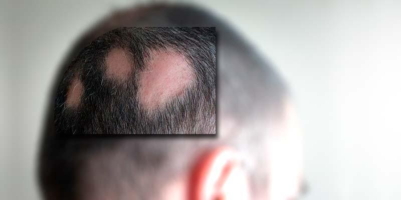 La alopecia areata presenta calvas o áreas sin pelo
