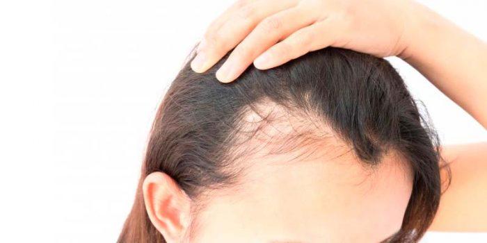 Caida de pelo en hombres causas